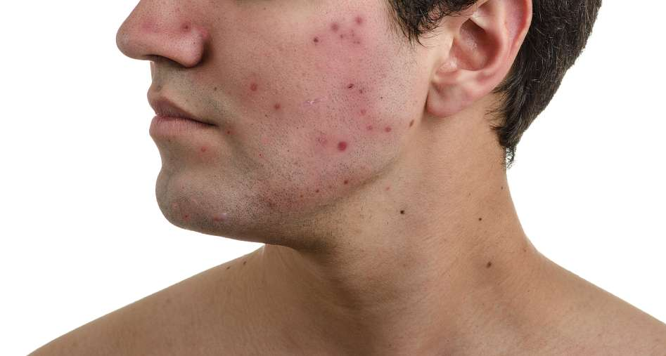 The experience of living with visible acne for young adults in emerging adulthood, focusing on bodily experiences and psychosocial issues